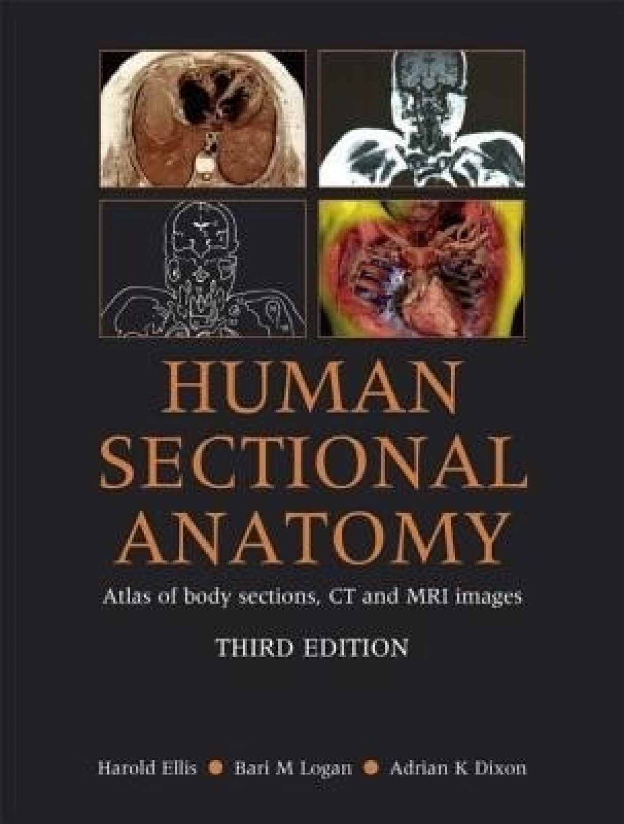 HUMAN SECTIONAL ANATOMY:ATLAS OF BODY SECTIONS,CT AND MRI IMAGES ...