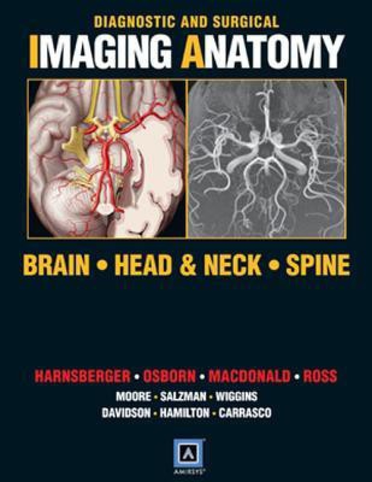 Diagnostic And Surgical Imaging Anatomy Brain Head And Neck Spine