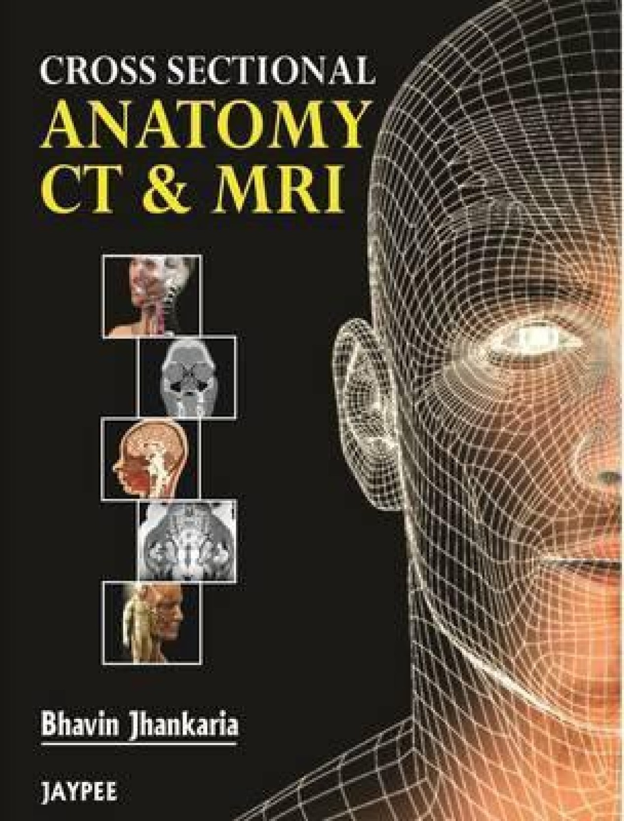 Cross Sectional Anatomy CT & MRI 1st Edition - Buy Cross Sectional ...