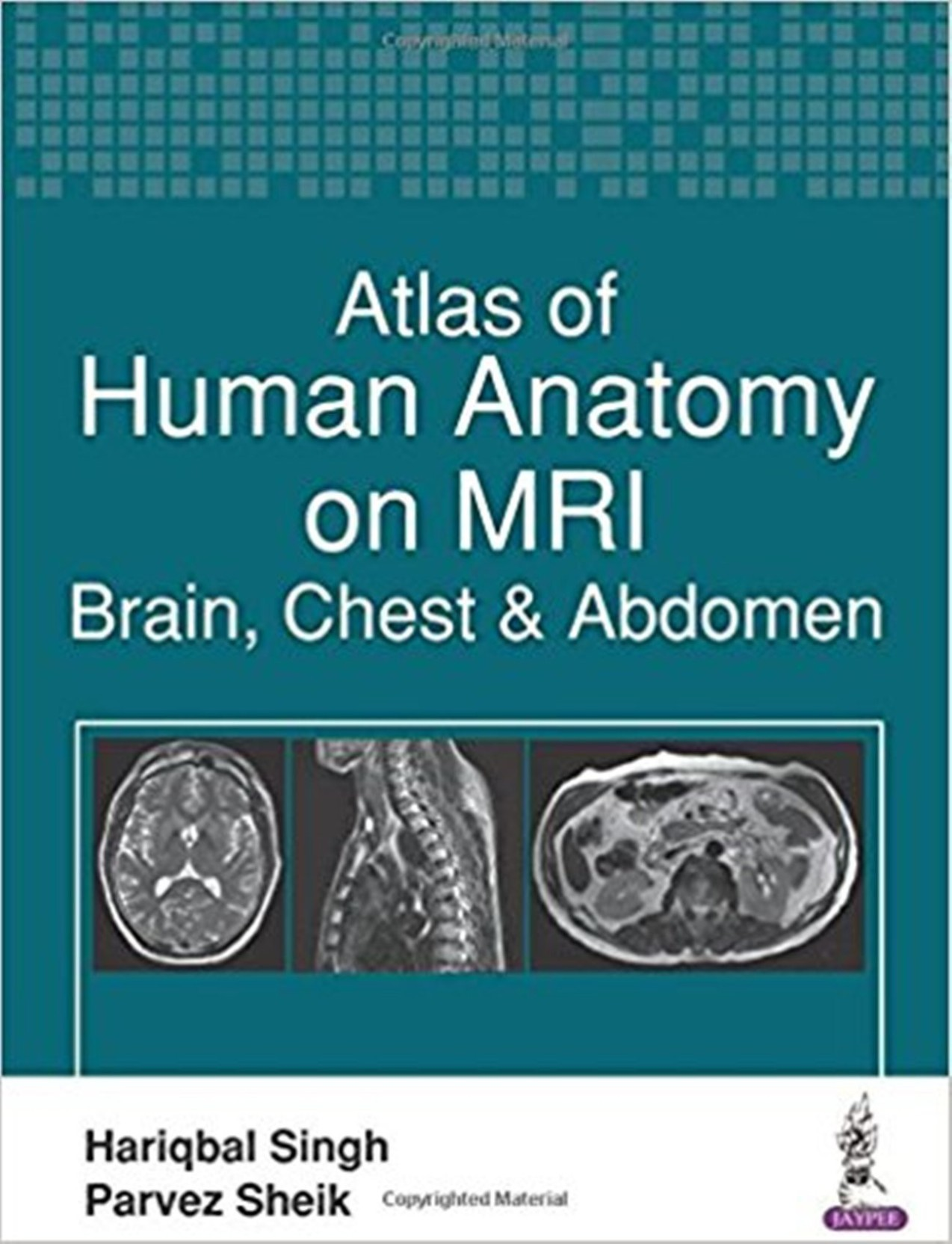 Atlas of Human Anatomy on MRI: Brain, Chest & Abdomen: Buy Atlas of ...