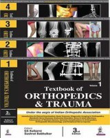 Textbook of Orthopedics and Trauma (4 Volumes)(English, Hardcover, Kulkarni GS)