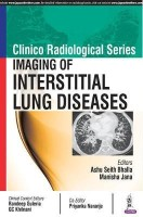 Clinico Radiological Series: Imaging of Interstitial Lung Diseases(English, Paperback, Bhalla Ashu Seith)