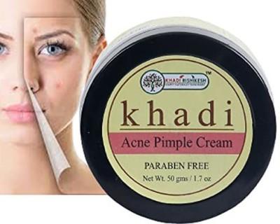 Khadi Rishikesh Acne pimple face cream for remove acne marks ,acne pimple, dark spot, ayurvedic anti acne cream ,with aloe...