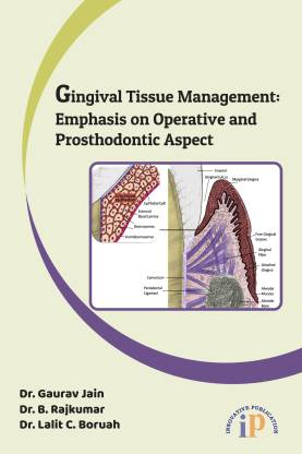 Gingival Tissue Management: Emphasis on Operative and Prosthodontic Aspect