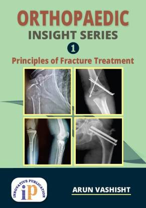 Orthopaedic Insight Series 1 : Principles of Fracture Treatment