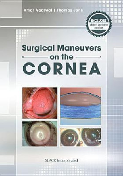 Krachmer Cornea Book