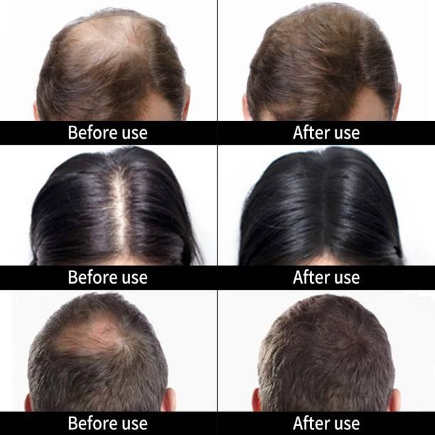 Osking Caboki Hair Loss concealer DARK BROWN Color(30 grams) Hair Building Fiber DB30G95 Soft Hair Volumizer Powder
