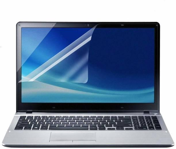 Saco Screen Guard for Dell Core i7-6700HQ Dell Alienware 17 R3 Series 17.3-inch Laptops