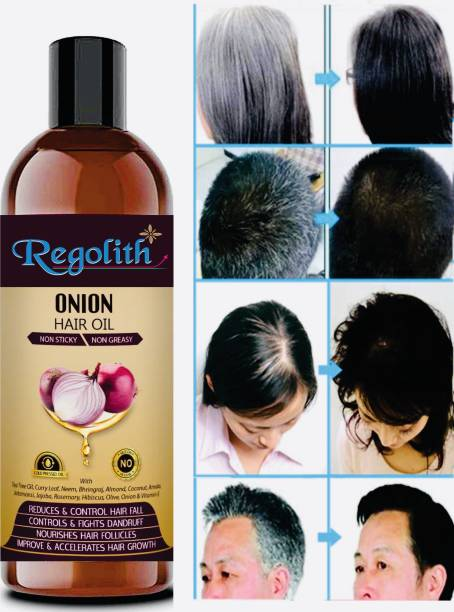Regolith Onion Hair Oil with 14 Essential Oils, Onion Hair Oil For Hair Growth Hair Oil
