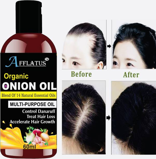 Afflatus Red Onion Oil With Sandalwood & Rose Oil Hair Oil
