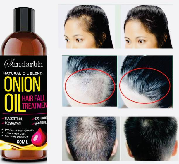 Sandarbh Onion Hair Oil with 14 Essential Oils for Hair Regrowth, Dandruff Control Hair Oil