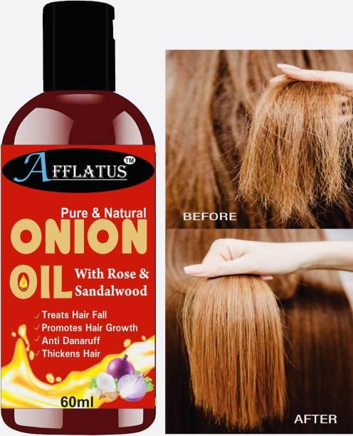 Afflatus 100% Pure & Natural RED ONION Herbal Hair Oil - Blend of Natural Essential Oils for Hair Growth, Treat hair loss, Dandruff Control Hair Oil