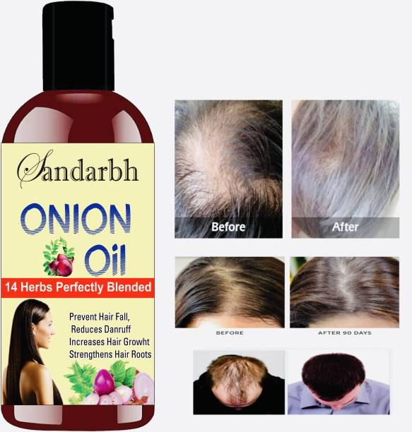 Sandarbh Onion Black Seed Oil For Hair Growth | Blend Of Multiple Essential Oils Hair Oil