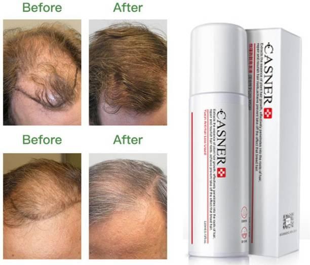 VHA Hair Growth Spray Hair growth balding Treatments Spray Alopecia Cure Help Healthy Hair Growth Serum For Family Men And Women Daily Use Mild Hair Volumizer Spray