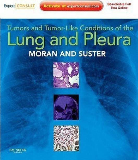 Tumors and Tumor-like Conditions of the Lung and Pleura - Expert Consult Online and Print