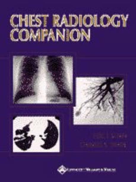 Chest Radiology Companion