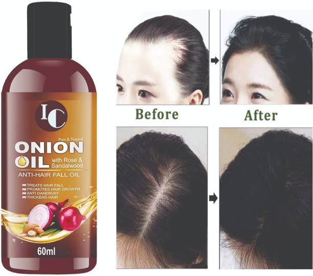 INDO CHALLENGE Onion Black Seed Oil for Hair Regrowth & Hair Fall Control , 14 Essential Oils, Onion Hair Oil For Hair Growth , Treat hair loss, Dandruff Control & Thickens hair ,Red Onion Oil, Nourshing Hair Treatment With Real Onion Extract Intensive Hair Fall Dandruff Treatment For Specially Men & Women Hair Oil
