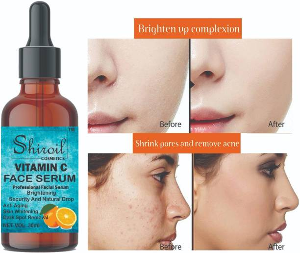 Shiroil Vitamin C Serum for Face Enrich with Hyaluronic Acid, Vitamin E, Tamarind Extract Aloevera Extract Dead Sea Salt for Brightening Ageing Wrinkle Control Dark Spot removal , Skin Illuminate Vitamin C Serum For Radiant Skin with High Potency Vitamin C Turmeric ,Anti Aging