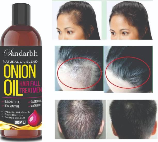 Sandarbh Onion Hair Oil with 14 Essential Oils for Hair Regrowth, Dandruff Control , Black Seed - Hair Care|Growth & Shine|Tea Tree Oil|Omega- 3|Vitamin-E , For Hair Growth | Blend Of Multiple Essential Oils Hair Oil