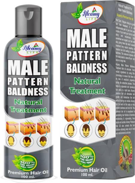 Alcamy Male Pattern Baldness Treatment Hair Oil (For Men & Women)