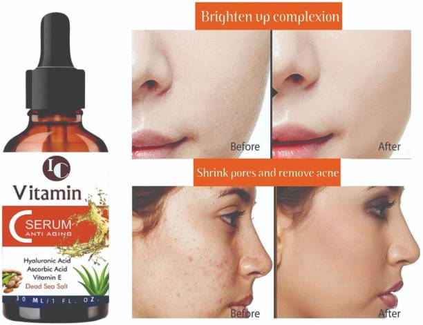 INDO CHALLENGE Vitamin C Serum With Hyaluronic Acid, Glowing Skin & Age-Defying , Fairness Brightening , With Hazel Extract, Grape Seed Extract, Face Pigmentation