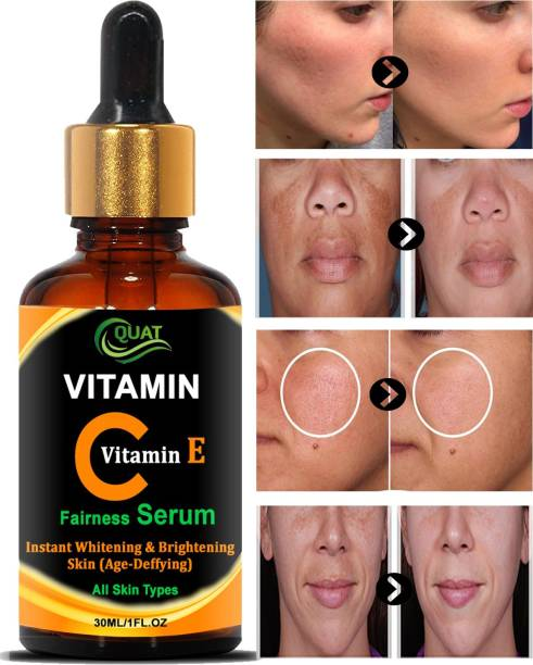 QUAT Vitamin C Serum for face Whitening, Pigmentation, Glowing, Oily Skin, Acne Scars, Brightening, Fairness, Anti-Aging Skin Repair with Hyaluronic Acid
