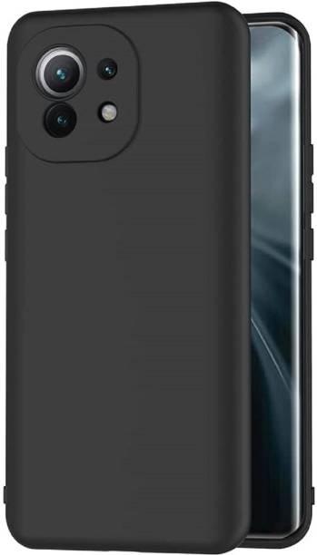 Flipkart SmartBuy Back Cover for Mi 11X, Mi 11X Pro, Mi 11X Pro 5G