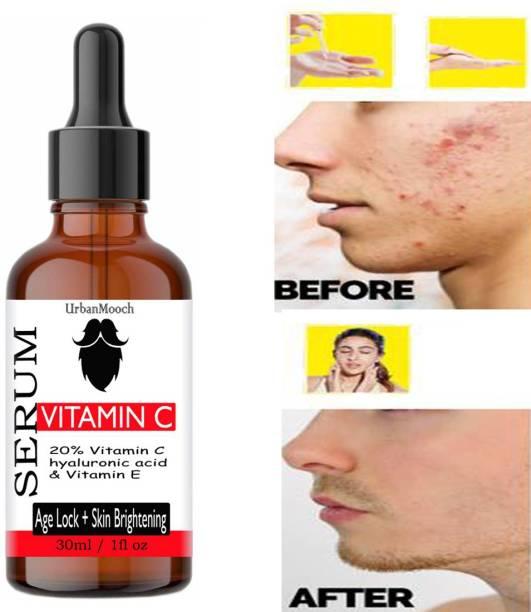 UrbanMooch Vitamin C Skin Brightening, Anti Aging, Spotless Skin,Sun Protection, Under Eye Circles, Facial Serum with Vitamin E and Hyaluronic Acid-