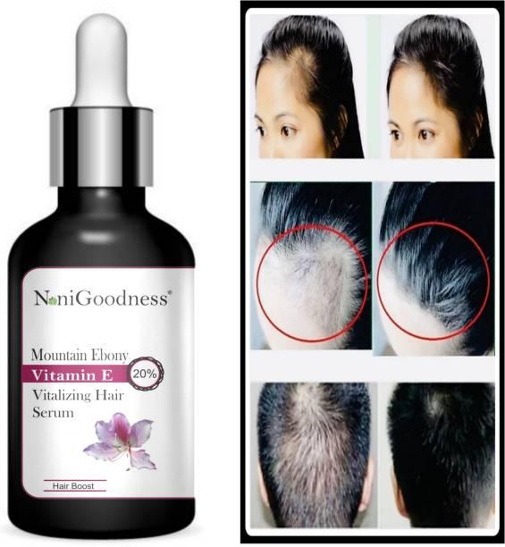 NoniGoodness Mountain Ebony vitalizing serum for falling hair