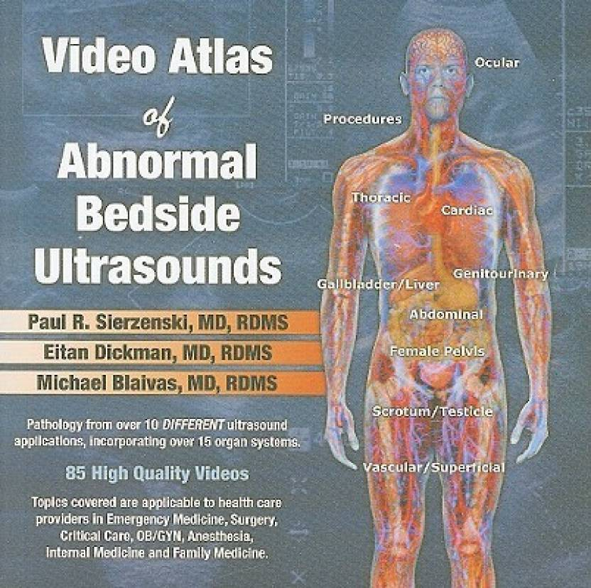 Video Atlas of Abnormal Bedside Ultrasounds: Buy Video Atlas of ...