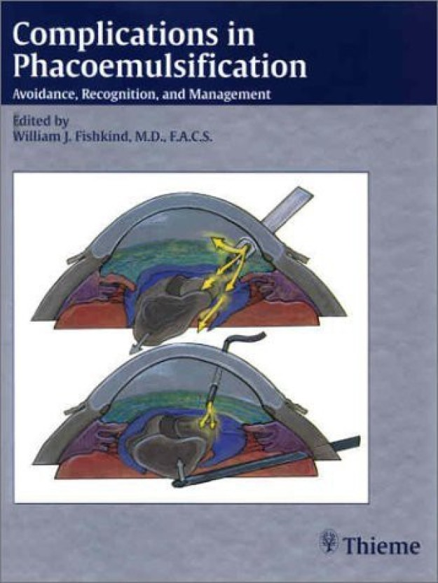 Complications in phacoemulsification : avoidance, recognition, and management